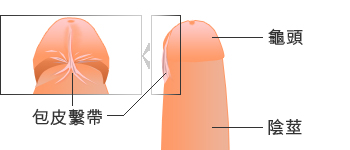 Short frenulum breve
